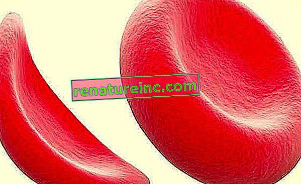 Qu'est-ce que l'anémie falciforme, les symptômes et le traitement