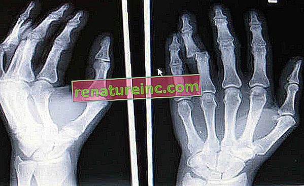 La lámina de rayos X es reciclable. Ver cómo descartar