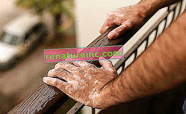 Vitiligo: qu'est-ce que c'est, traitement et symptômes