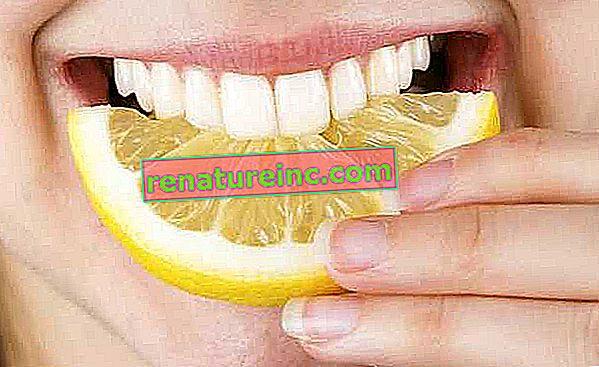 Избелването на зъбите с лимон лоша идея ли е?