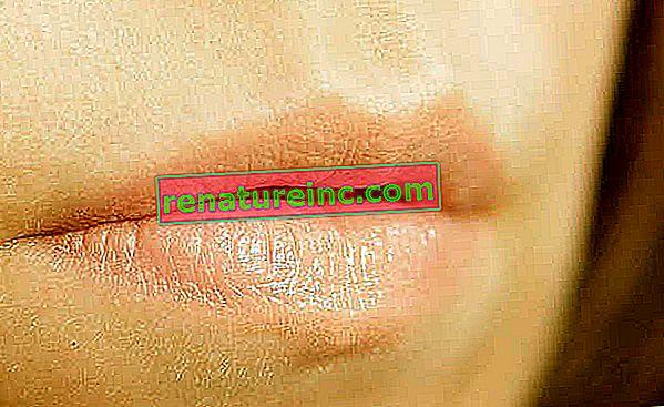 Herpes labial: tratamiento, síntomas y prevención